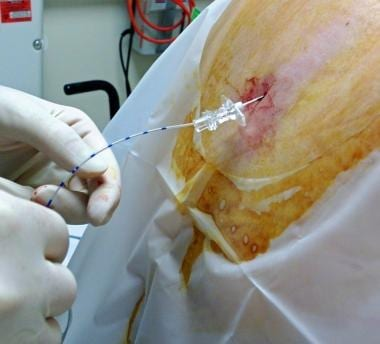 Epidural catheter advanced through the epidural ne