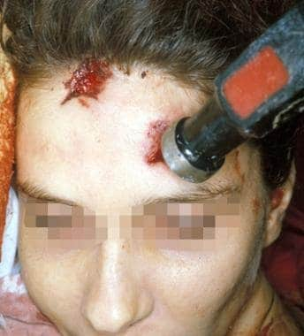 Round-faced hammer wounds of face in a 24-year-old