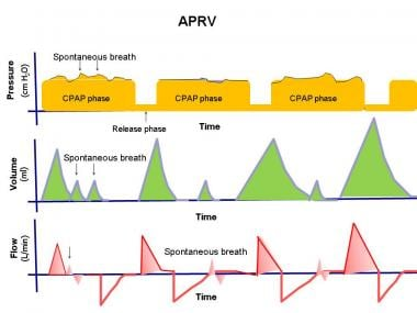 Mechanical Ventilation: Background, Classifications of Positive