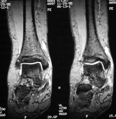 Ankle Tibialis Posterior Tendon Injuries Coronal