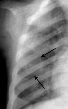 Anteroposterior radiograph of the right hemithorax