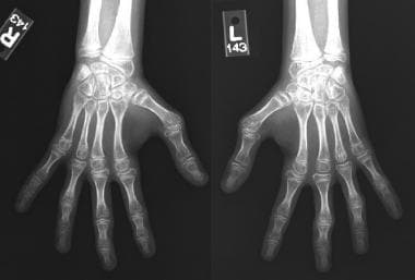 Hand and wrist radiographs of the patient with ina