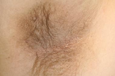 Acanthosis nigricans of the axilla with one skin t