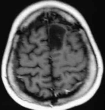 Preoperative MRI of the brain of a 28-year-old mal