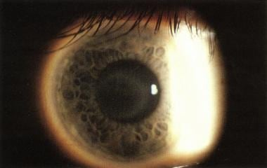 A 22-year-old woman with circular corneal opacity