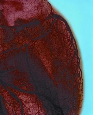 A color-enhanced angiogram of the heart left shows
