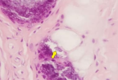 Pseudogout. H&E stain, high power, under polarized