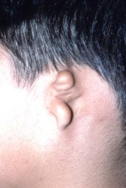 Grade 3 microtia: the most common type.