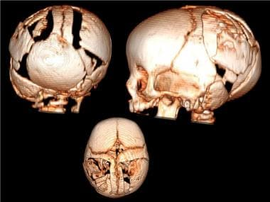 Lambdoid craniosynostosis repair. 3D rendering of