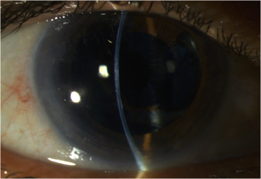 Slit lamp photograph of the same patient as above