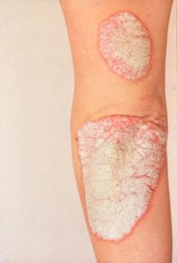 Benign Skin Lesions: Overview, Defining the Lesion, Papules