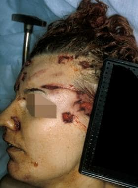 Tack hammer wounds of the face in a 30-year-old fe