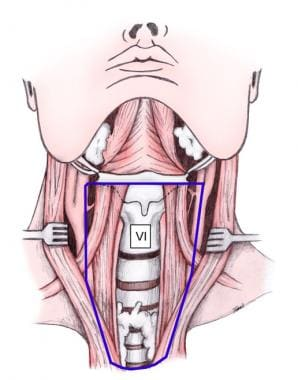 Central neck dissection.