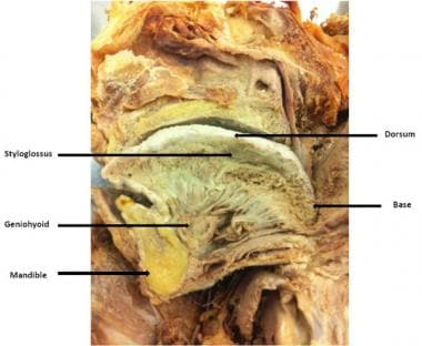 Sagittal section through tongue.