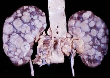 Autopsy specimen from a 52-year-old woman with non
