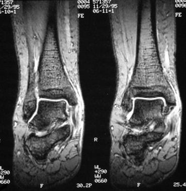 Ankle, tibialis posterior tendon injuries. Coronal