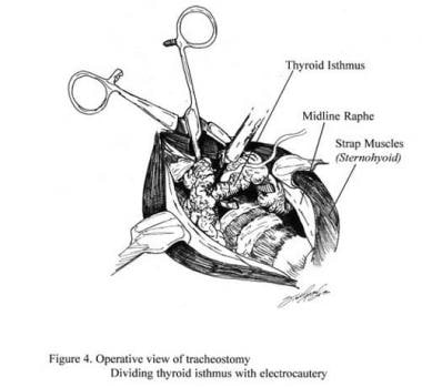 Operative view of tracheostomy. The thyroid isthmu