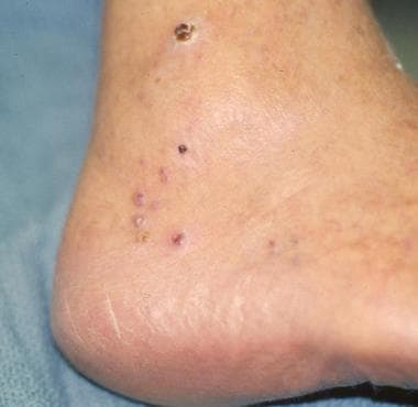 Classic Kaposi sarcoma on the foot of an elderly p