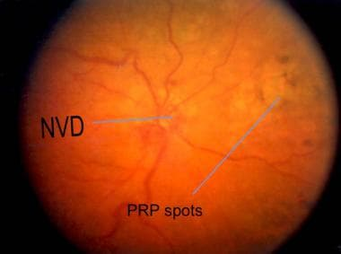 Fundus picture of the same patient with central re
