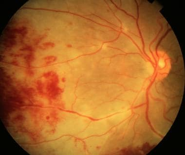 Retinitis typically starts in the midperiphery and