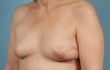 Postoperative Latissimus Dorsi Reconstruction