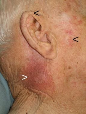 Preauricular and helical scars (black arrows) from