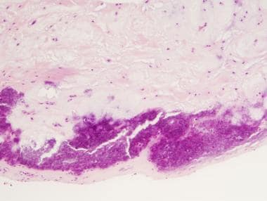 H&E stain, medium power, of pseudogout with pale p