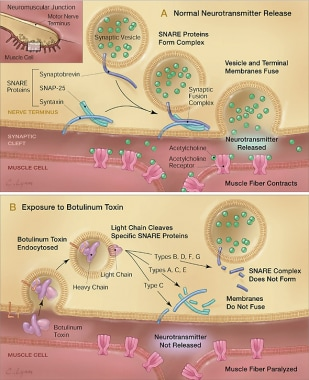 Courtesy of Arnon SS, et al. Botulinum toxin as a