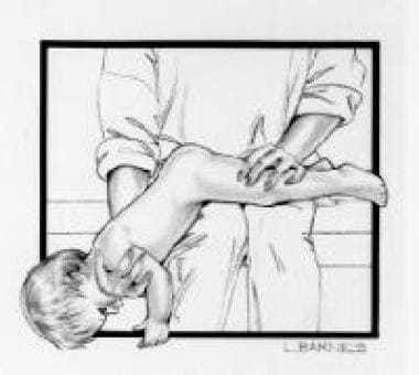 Position for enema administration in an infant.