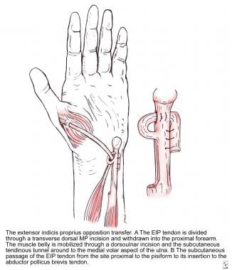 tendon transfers background concepts timing of tendon transfer