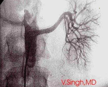 Renal arteriogram obtained after renal percutaneou