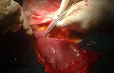 Subtotal gastrectomy. Following partially stapled