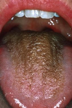 Brown hairy tongue in middle-aged woman who drinks