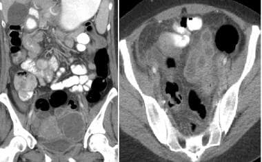 Forty-four-year-old woman underwent emergent CT fo