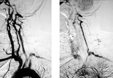 Arch aortogram initially shows apparent absence of