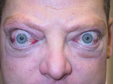 Severe proptosis, periorbital edema, and eyelid re