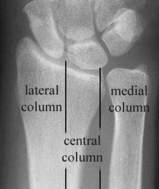 Three-column concept of wrist anatomy.