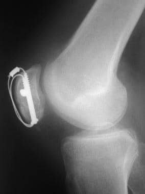 Postoperative lateral radiograph of patella fractu