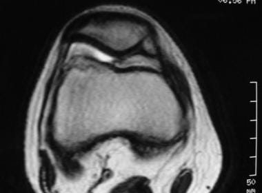 Plica syndrome. Axial MRI demonstrating abundant m