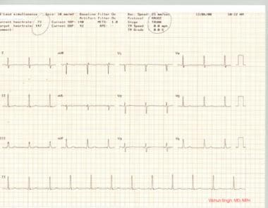 Stress test, part 1. Resting ECG showing normal ba