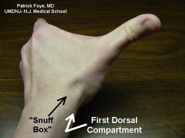 First dorsal compartment of wrist includes tendon