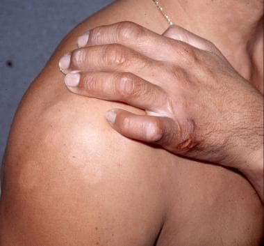 Multiple flat hypopigmented lesions on shoulder an