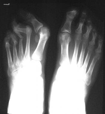 Radiograph of feet of 27-year-old man shows erosio
