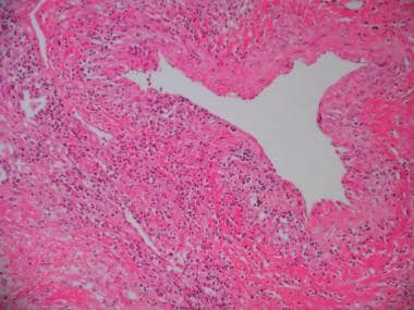 Lung biopsy specimen from a patient with granuloma