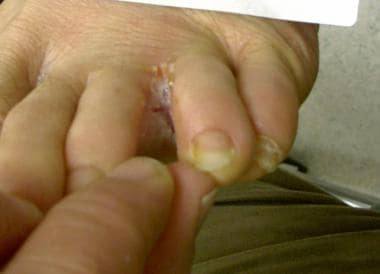 Tinea pedis lesion. Image courtesy of Drgnu23 (ori