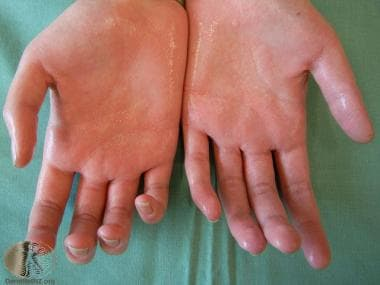 Hyperhidrosis of the palms. Courtesy of DermNet Ne