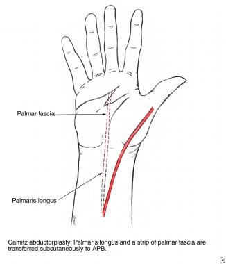 Camitz abductorplasty, in which the palmaris longu