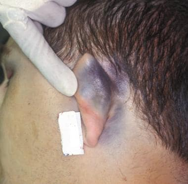 Battle sign with bluish discoloration of left ear