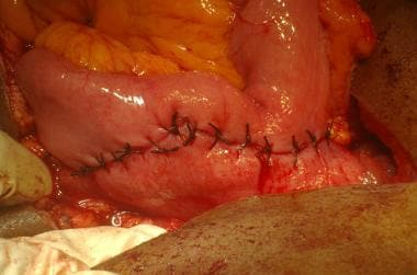 Subtotal gastrectomy. Gastrojejunostomy anastomosi
