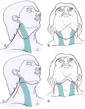Incisions for selective neck dissection (I to III)